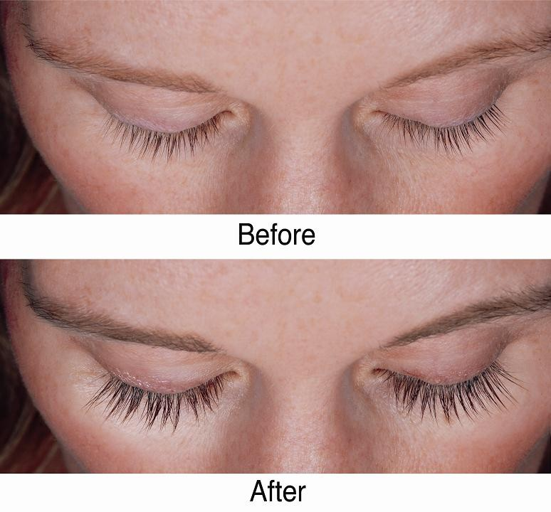1b7e29625df idol lash before and after